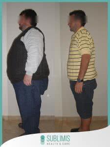 Cirugia de la Obesidad Antes y Despues