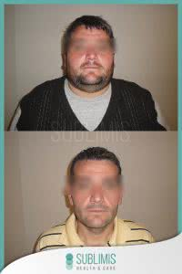 Cirugia de la Obesidad Fotos