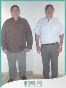 Cirugia Obesidad
