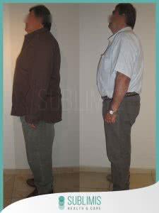 Cirugia Obesidad Antes y Despues