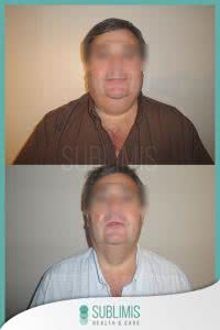 Cirugia Obesidad Fotos