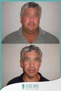 Fotos de Antes y Después Cirugía de Banda Gástrica