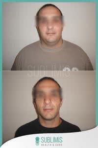 Fotos y Resultados de Cirugia Bariatrica