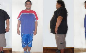 Antes y Después de un Bypass Gastrico