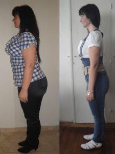 Cruce Duodenal Mujer Antes y Después