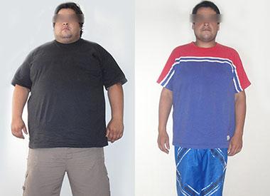 Antes y Después de un Bypass Gástrico