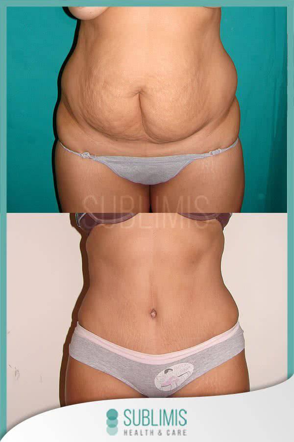 Cirugía de abdomen, antes y después