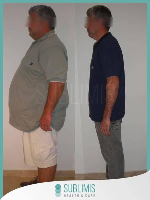 Antes y post cirugia bariátrica